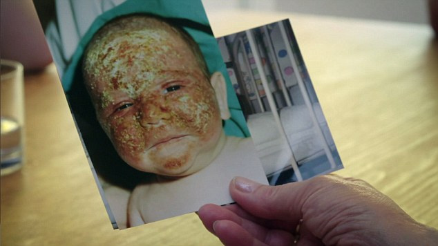 Alex's skin burnt while he was a child (BBC Two)
