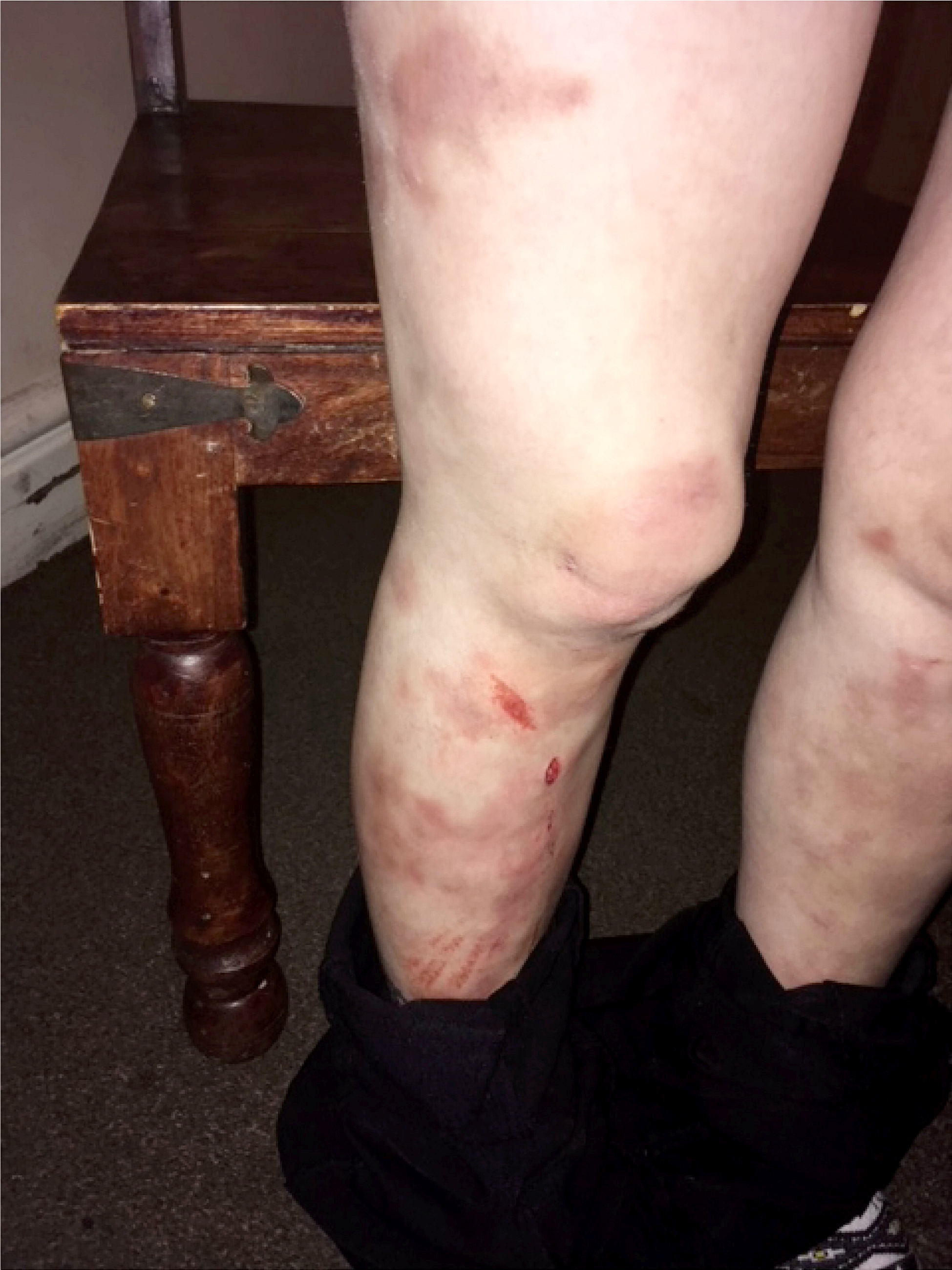 Around 95% of Jodie's body was covered in bruises (Source: South West News Service)