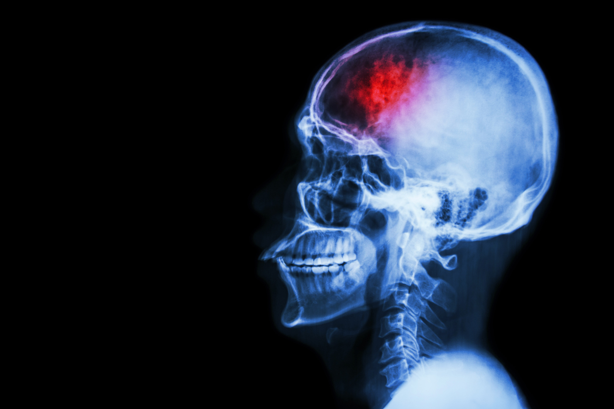 "Medics had initially thought she suffered a seizure, but later diagnosed a rare type of bleeding on the brain which was relatively ""small"" in size. (iStock)"